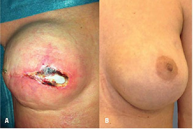 Post-operative results: A. Skin flap necrosis in a smoker revealing the acellular dermal matrix underneath.B. Nipple-sparing breast reconstruction in a non-smoker.
