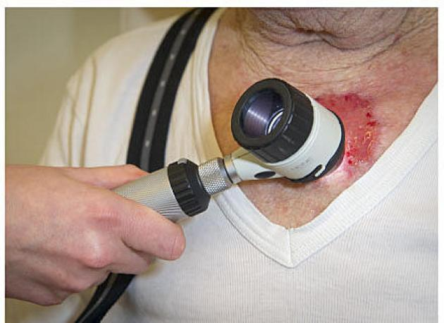 Skin cancer patients typically attend follow-up for several years after treatment. Photo: Karsten Kanding Christrup.