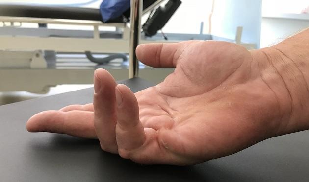 A 66-year-old male with needle fasciectomy of the fifth finger proximal interphalangeal (PIP) joint