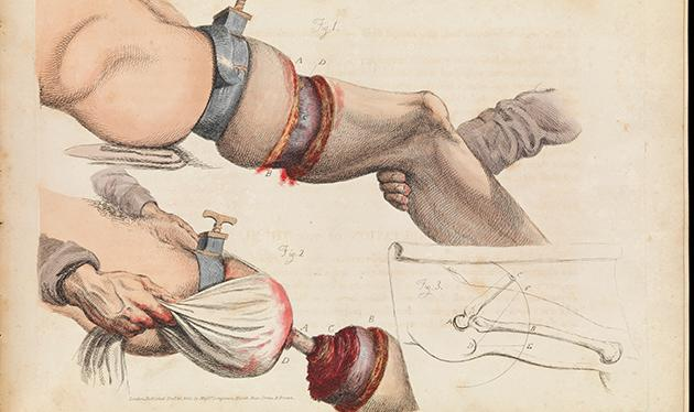 Kirurgisk planche fra 1800-tallet viser en låramputation. (The Wellcome Collection)